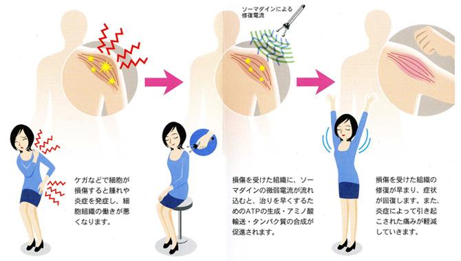 微弱電流治療器ソーマダインの治療イメージ